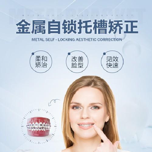 【牙齿矫正】金属自锁牙齿矫正(普通难度)