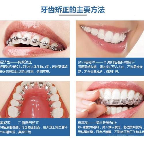 【牙齿矫正】半隐形托槽陶瓷矫正(普通难度)