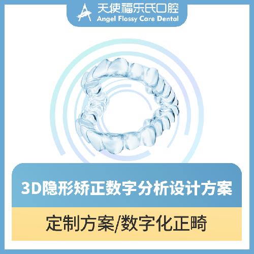【正畸取模设计方案】牙齿矫正ITERO&方案定制