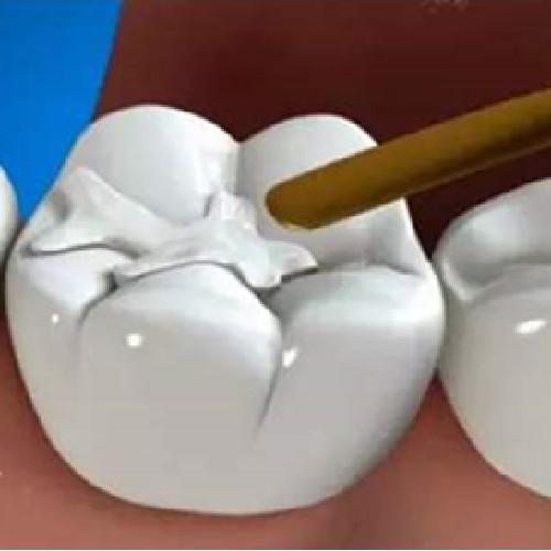 【补牙流体树脂】补牙