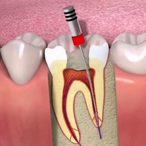 【根管治疗前牙】根管