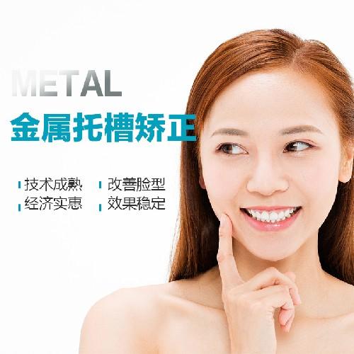 【牙齿矫正国产传统矫正(普通)】金属托槽矫正,经济实惠,矫正效率高