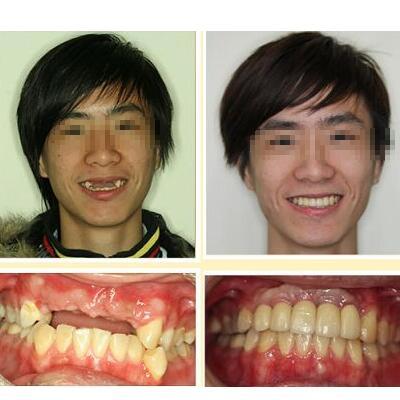 上海种植牙多少钱?这三家医院便宜还靠谱