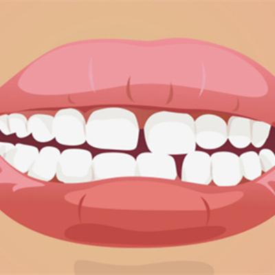 牙齿缝隙越来越大是什么原因?牙齿缝隙越大该怎么治疗