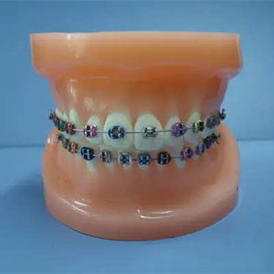 青岛牙齿正畸哪家好?这几家牙科医院做牙齿正畸靠谱吗